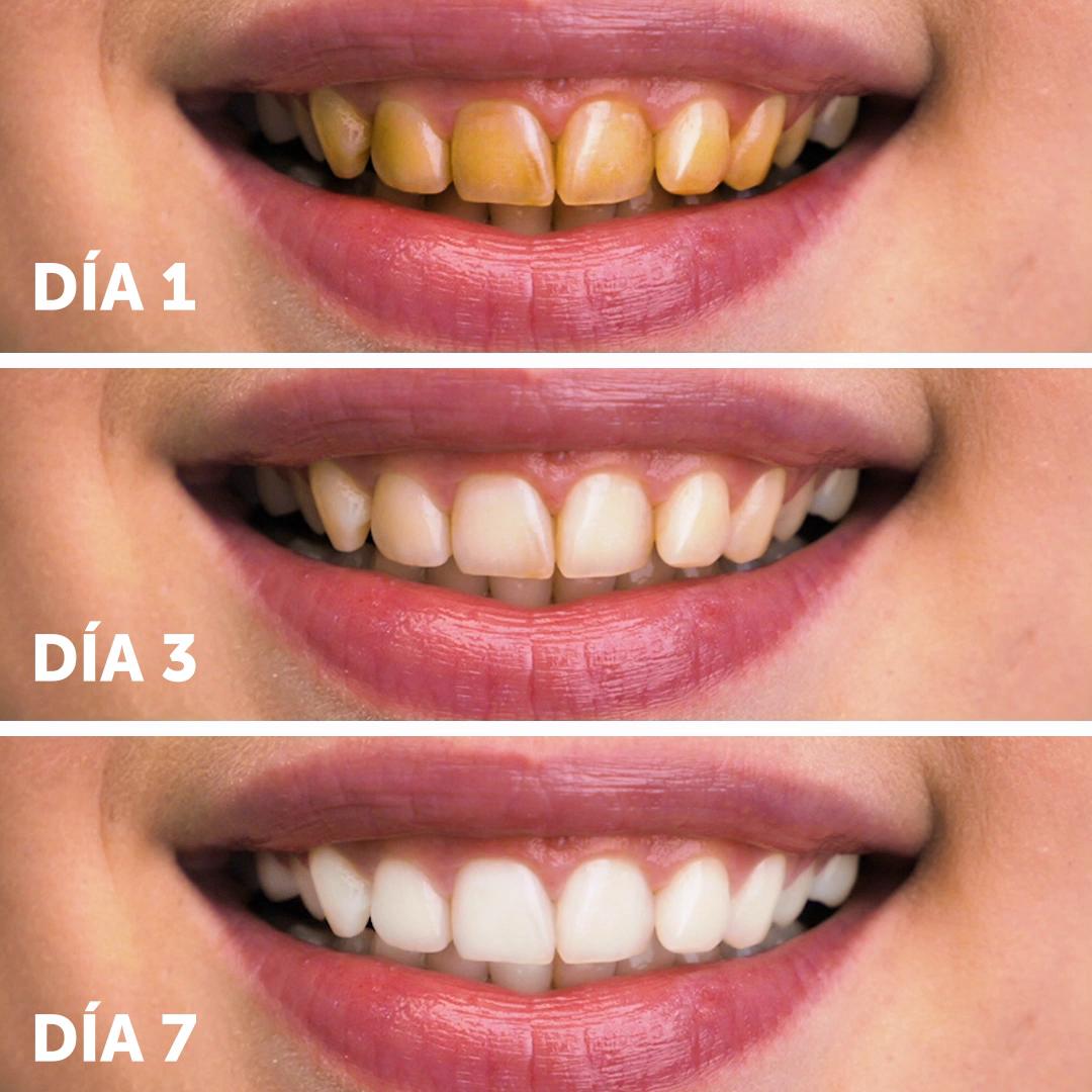Photo of Wie Sie Ihre Zähne superschnell aufhellen