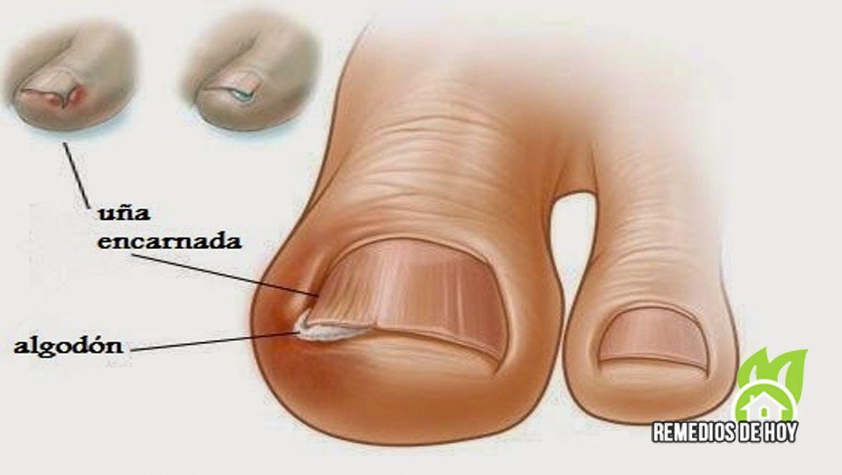 Tratamiento casero para uñas encarnadas del pie | trucos caseros ...