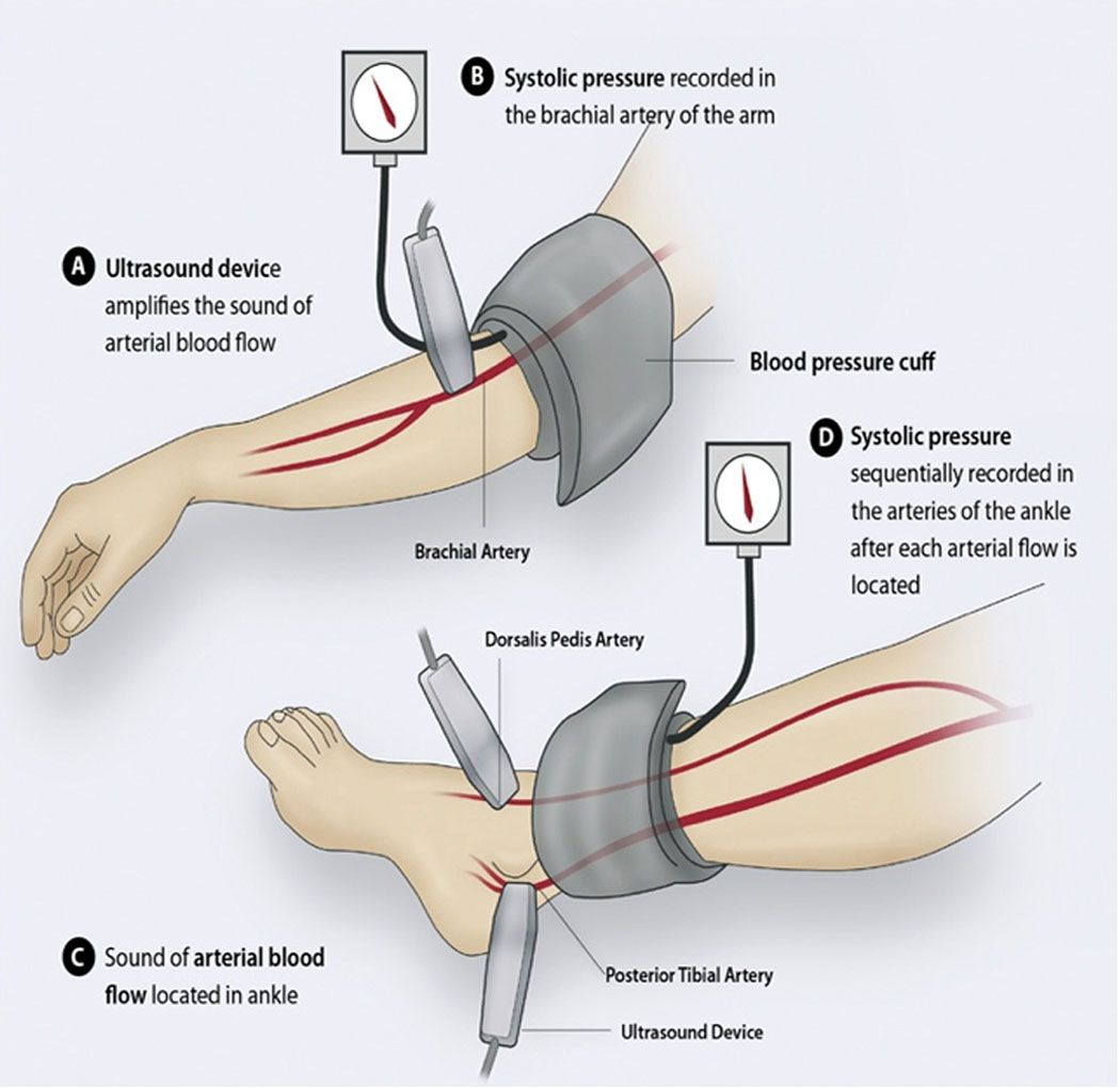 Peripheral Arterial Disease Pad Is A Common Condition