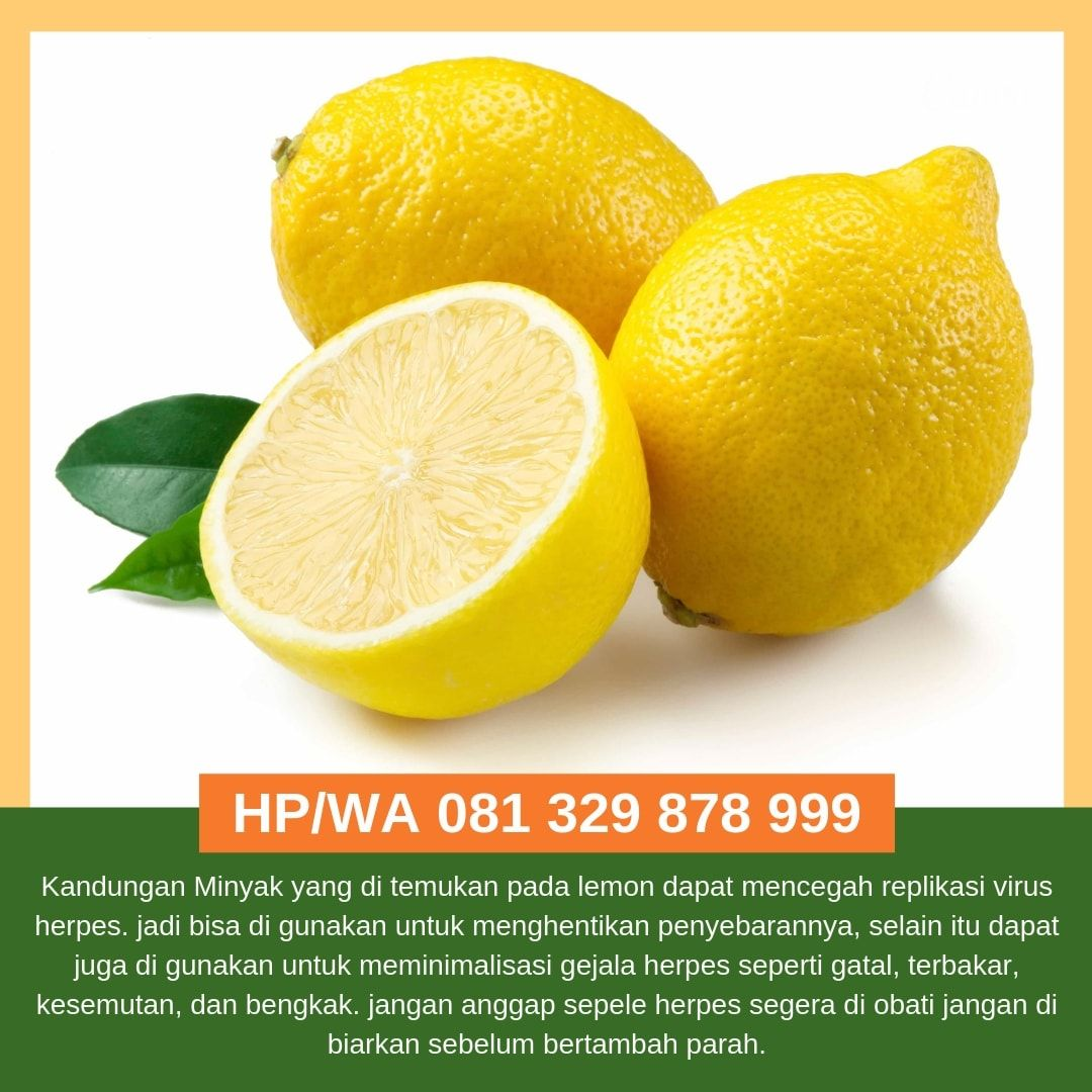 48++ Cara menghilangkan kutu dengan lemon ideas