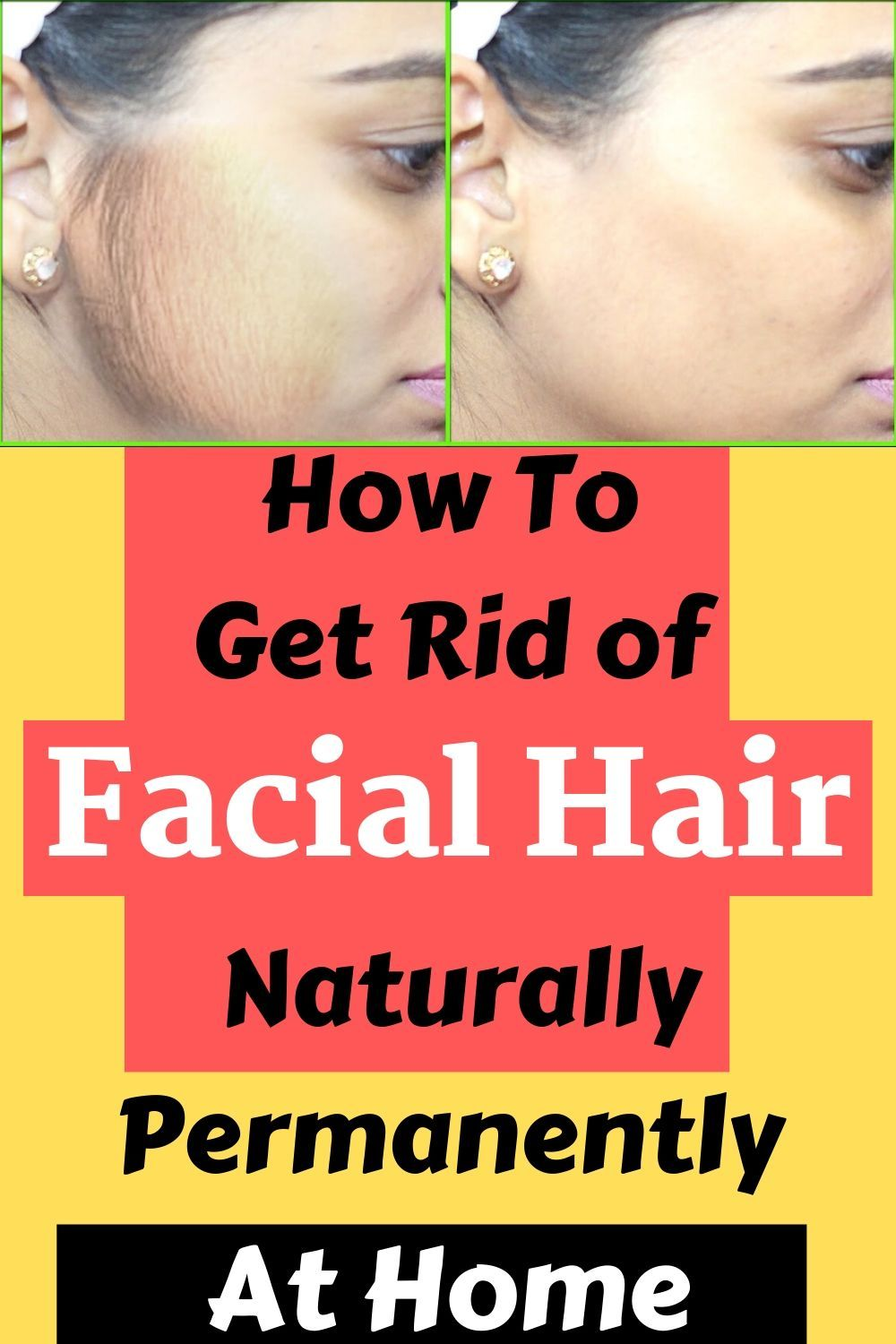 dabaac946f746d336440b513bebdf6eb - How To Get Rid Of Oily Face Permanently Naturally