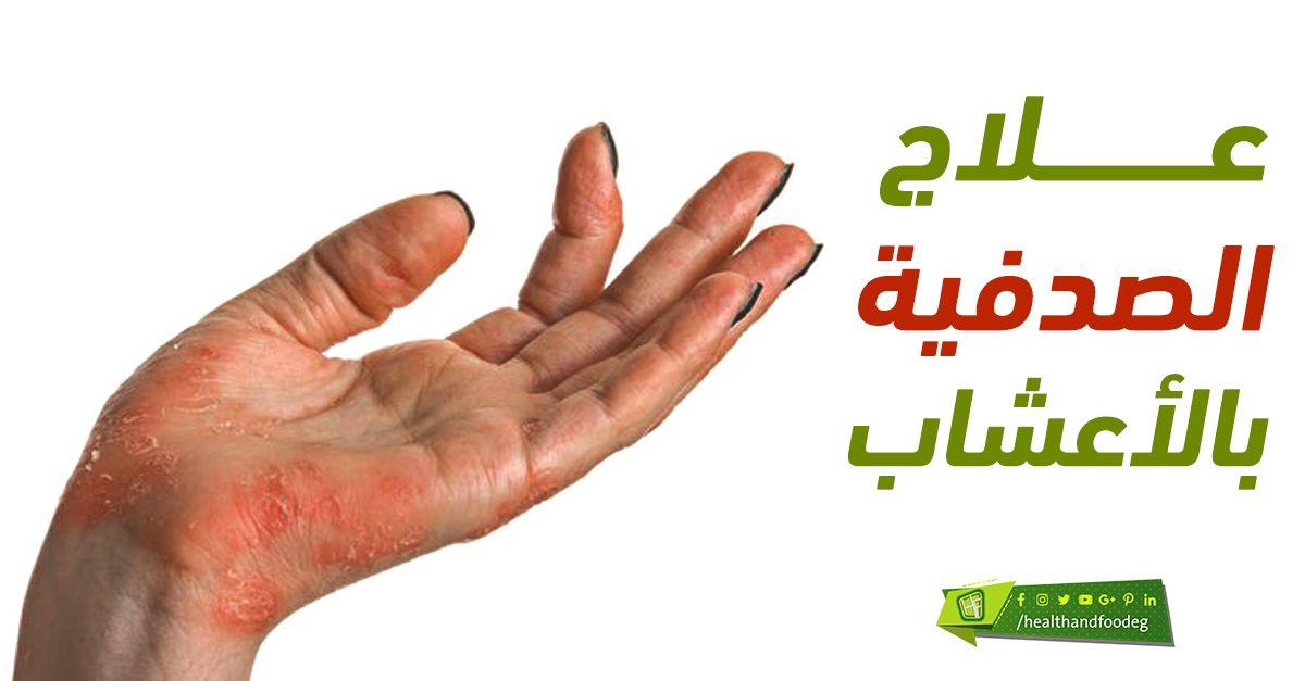 علاج الصدفية بالاعشاب Okay Gesture