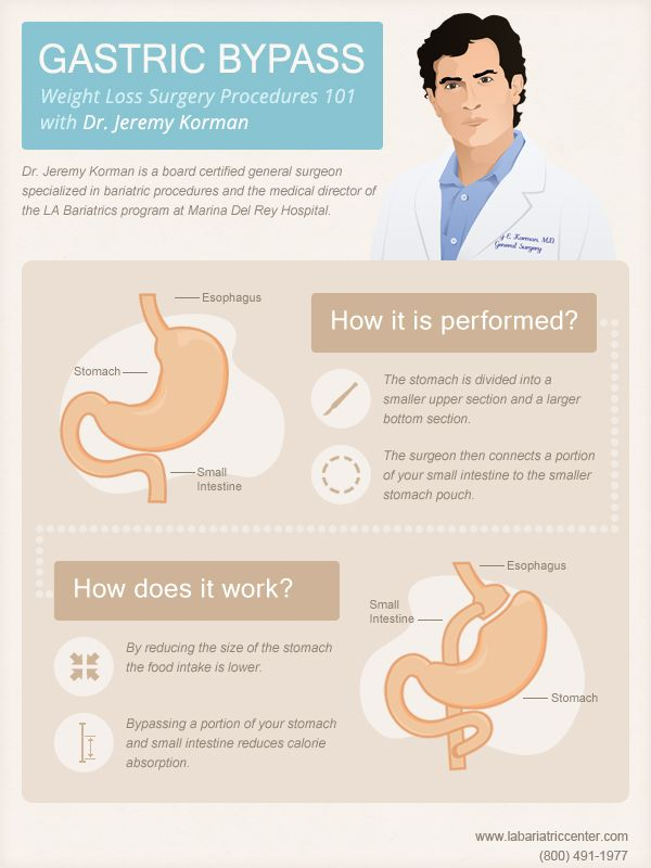 The Gastric Bypass Procedure Is One Of The Most Common Bariatric