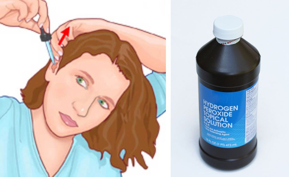 She Drops Hydrogen Peroxide In Her Ears 3x Per Week For a