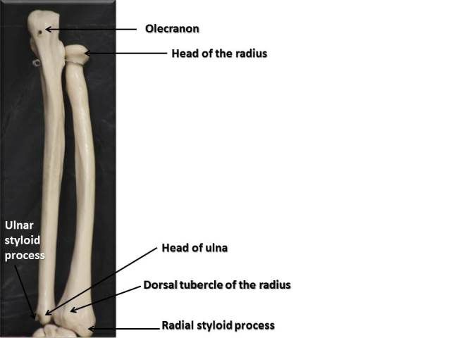 Bones & Joints of the Upper Limb | HumerusRadiusUlna | Pinterest