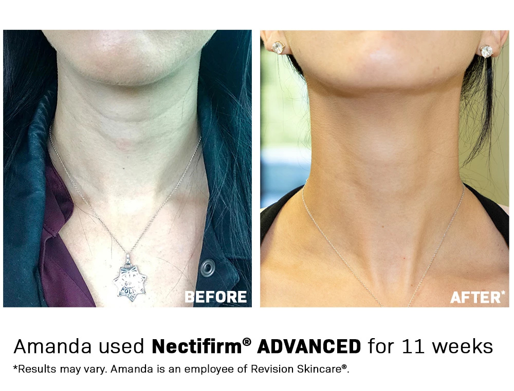 Nectifirm Advanced Next Generation Technology For A Younger Looking Neck And Decolletage Revision Skincare Skin Needling Skin Care