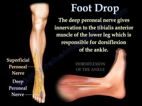 Foot Drop, Peroneal Nerve Injury - Everything You Need To ...