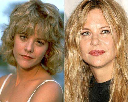 Meg Ryan Lip Implants Surgery Before And After Photos