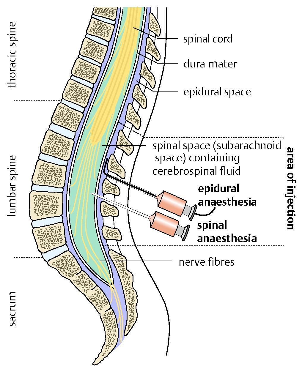 Gro Spinal Anesthesia Anatomy Zeitgenssisch Menschliche Anatomie