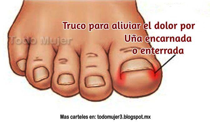 Remedios Caseros Para Barros Enterrados