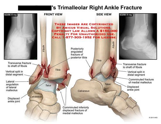 Broken ankle anatomy