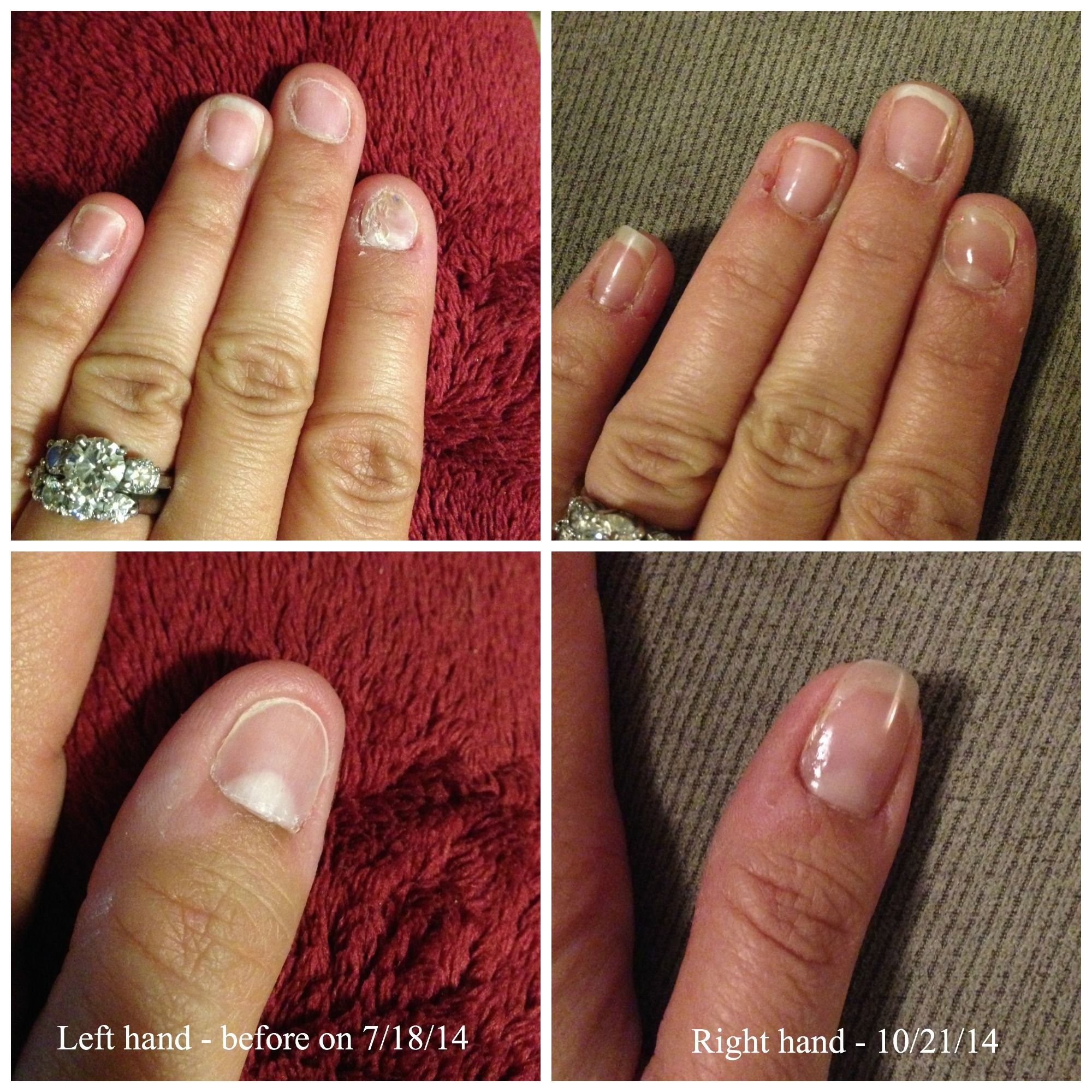 As A Perpetual Nail Biter I Decided To Give Jamberry Try The Wraps