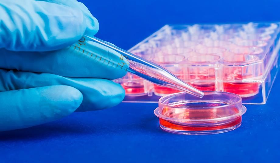 Business Essay Example Stem Cell Research Pros And Cons Essay Structure The Pros And Cons Of Stem  Cell Research Stem Cell Research Pros Essay Descriptive Essay Thesis also Small Essays In English Stem Cells Research Falls In The Field Of Regenerative Medicine The  Essay Examples For High School Students