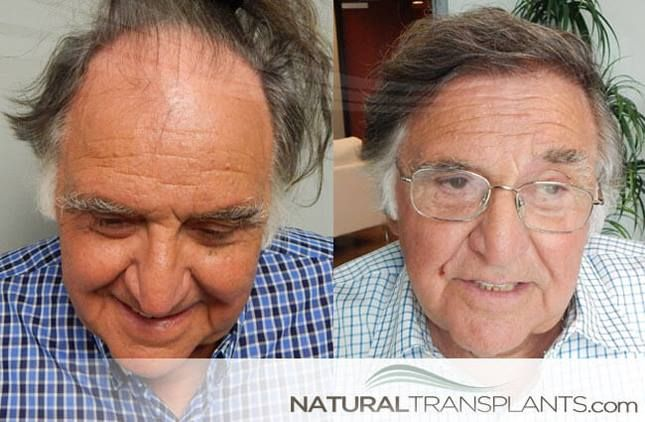 Hair Transplant Scar Hair Transplant Before And After Photos