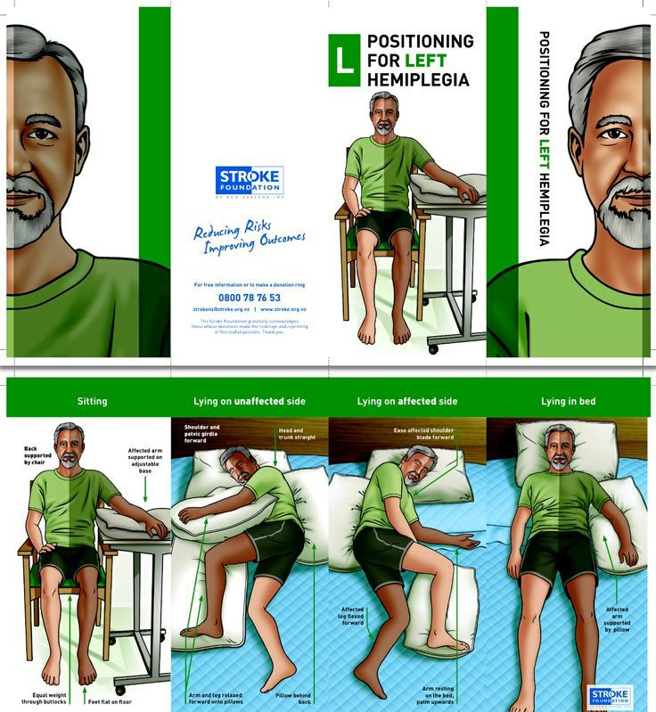 Stroke patient education positioning for left hemiplegia or stroke patient education positioning for left hemiplegia or weakness negle Image collections