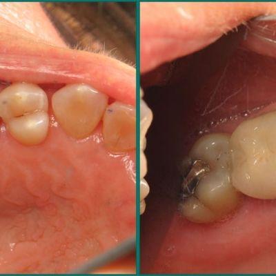 Cosmetic Dentists in Fredericksburg, VA