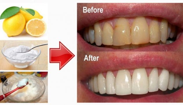 Whiten Teeth With Baking Soda And Lemon Teeth Whitening Teeth