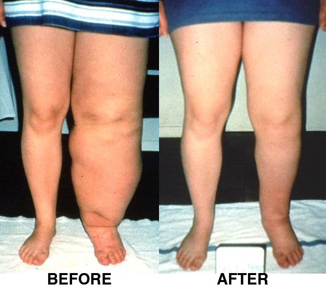 Lymphedema Therapy Certification | education | Pinterest ...