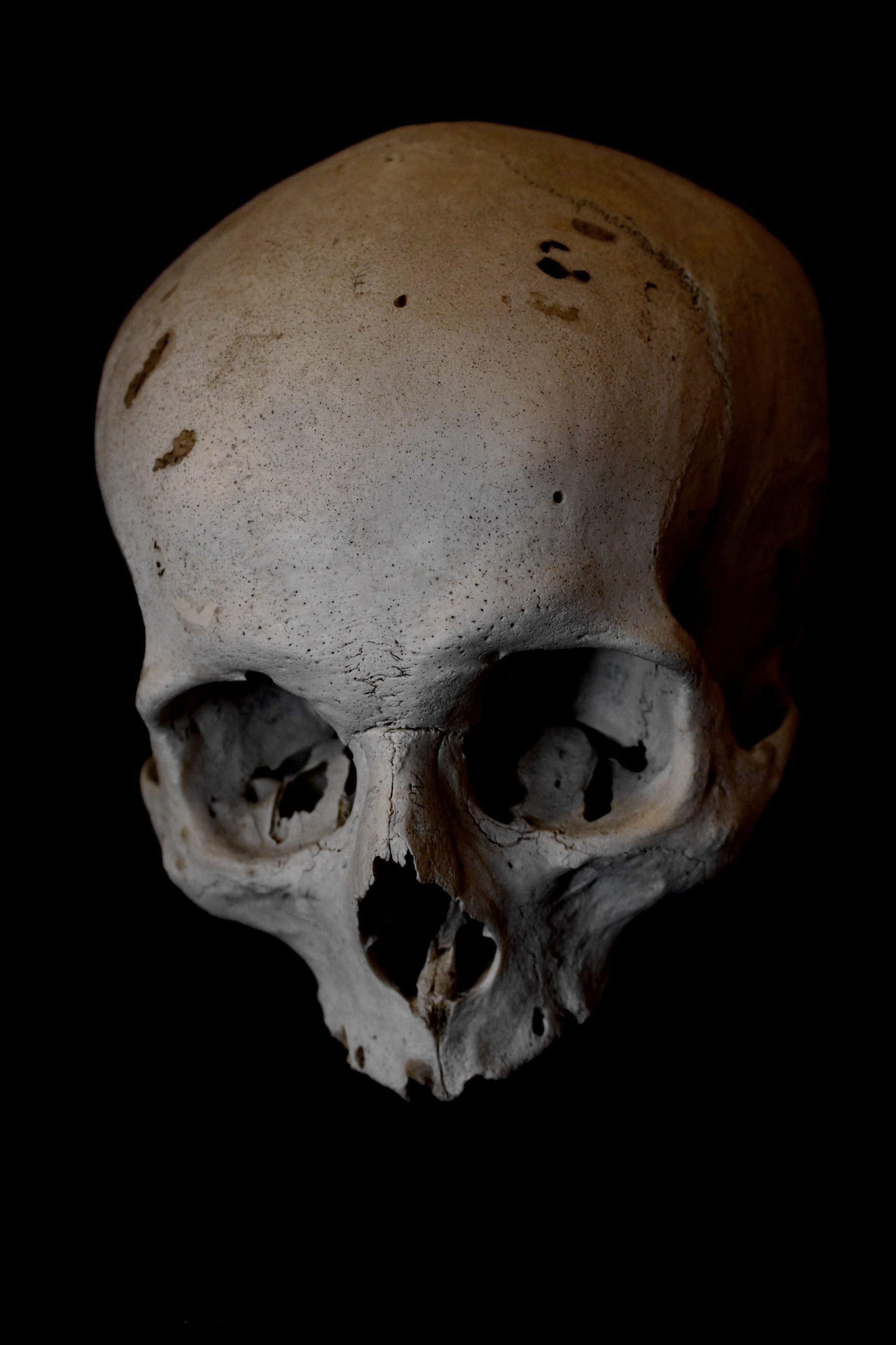 15++ Skulls reference ideas