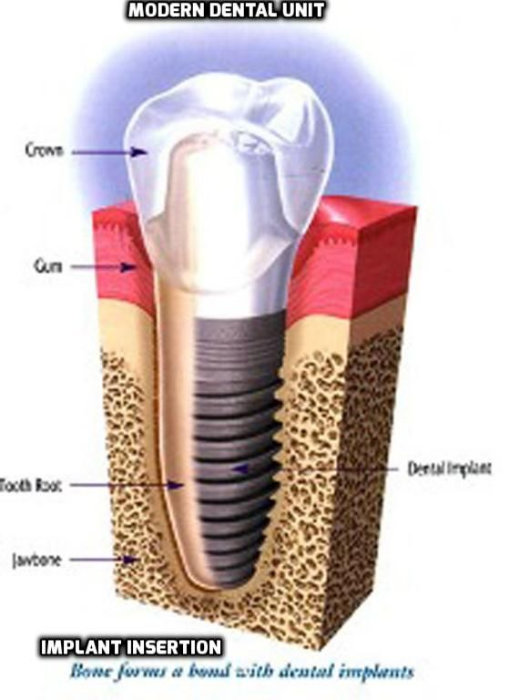 Dental Implant A dental Implant is a fake tooth root that