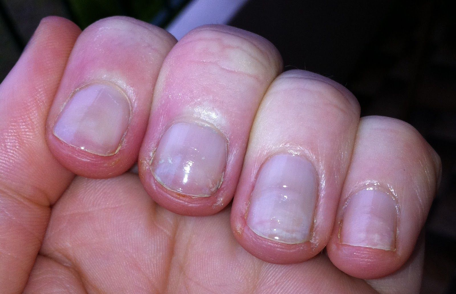 Thin Flimsy Nails After Acrylics Google Search