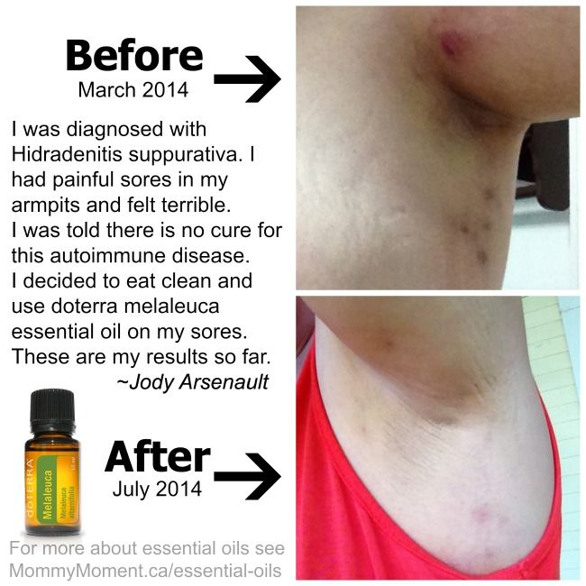 Healthy eating, essential oils and pictures of my disease – Hidradenitis suppurativa