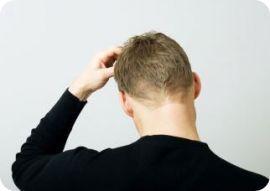 Causas de picazón en la cabeza