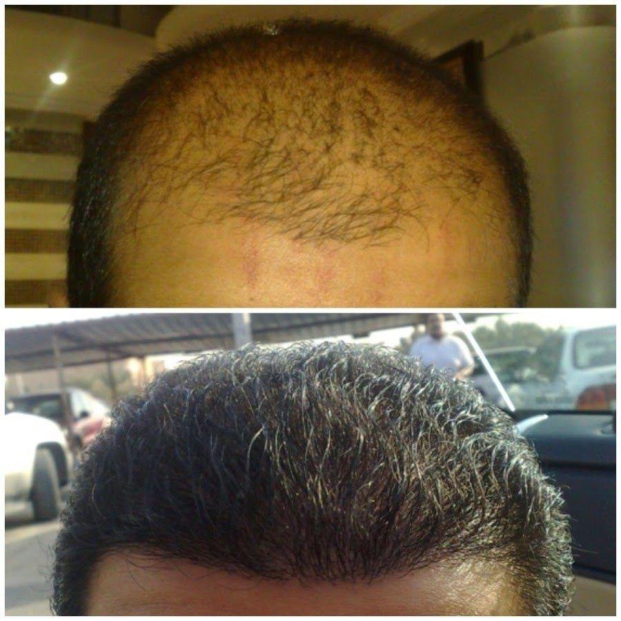 عالم الطبخ والجمال افضل طريقة التخلص من الصلع الأمامي وعلاج الشعر الخفيف ومنع تساقط الشعر Hair Skin Care Skin