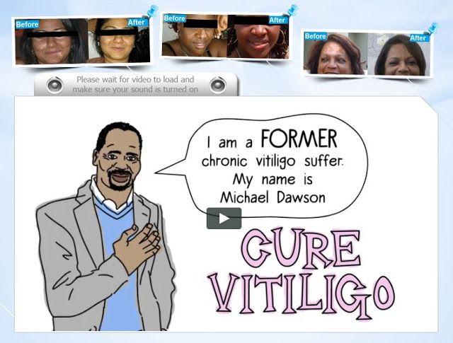 Natural Vitiligo Treatment - The Vitiligo Cure That Doctors Don't Want You To Discover