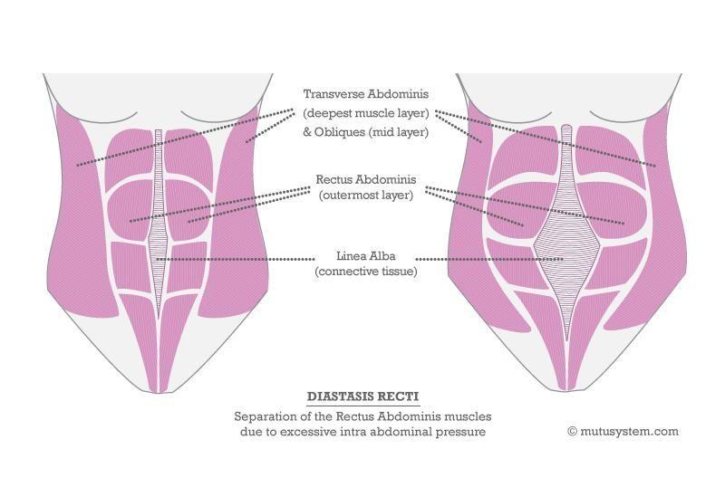 Transverse abdominal exercises postpartum postpartum