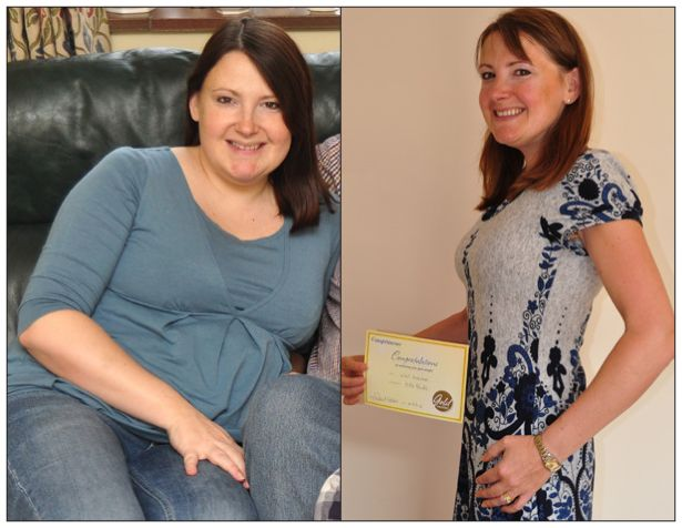 Jumpstart weight loss after weight loss surgery picture 3