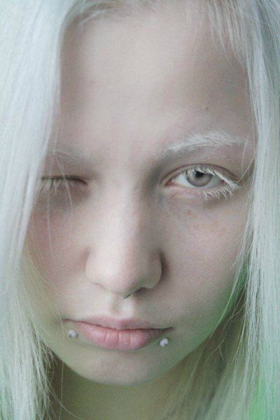 What does an albino person look like-4973