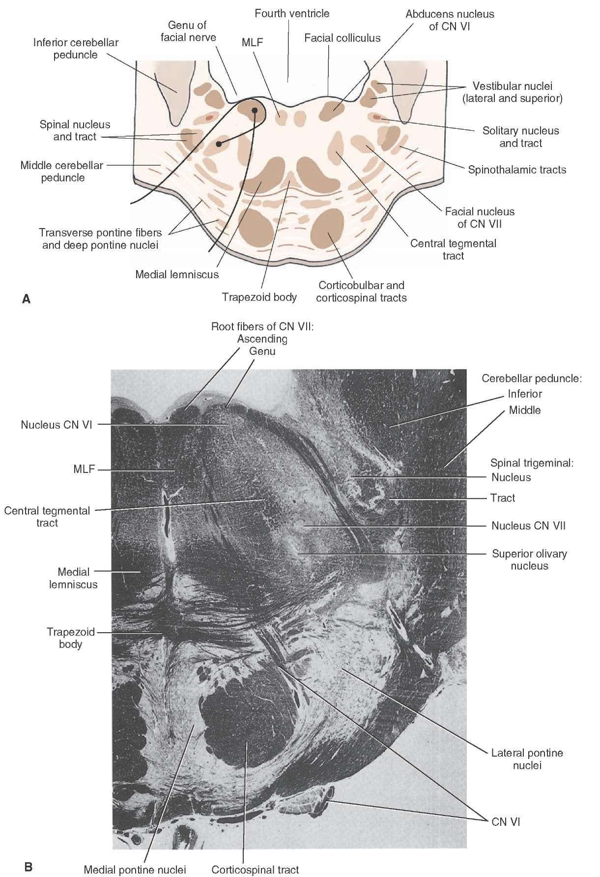 Caudal Pons A Cross Section Through The Caudal Aspect