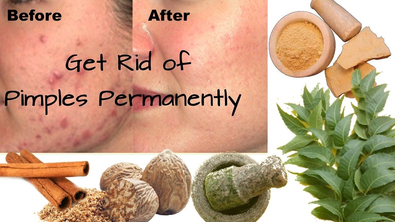 Get rid of pimples permanently with arogyam pure herbs