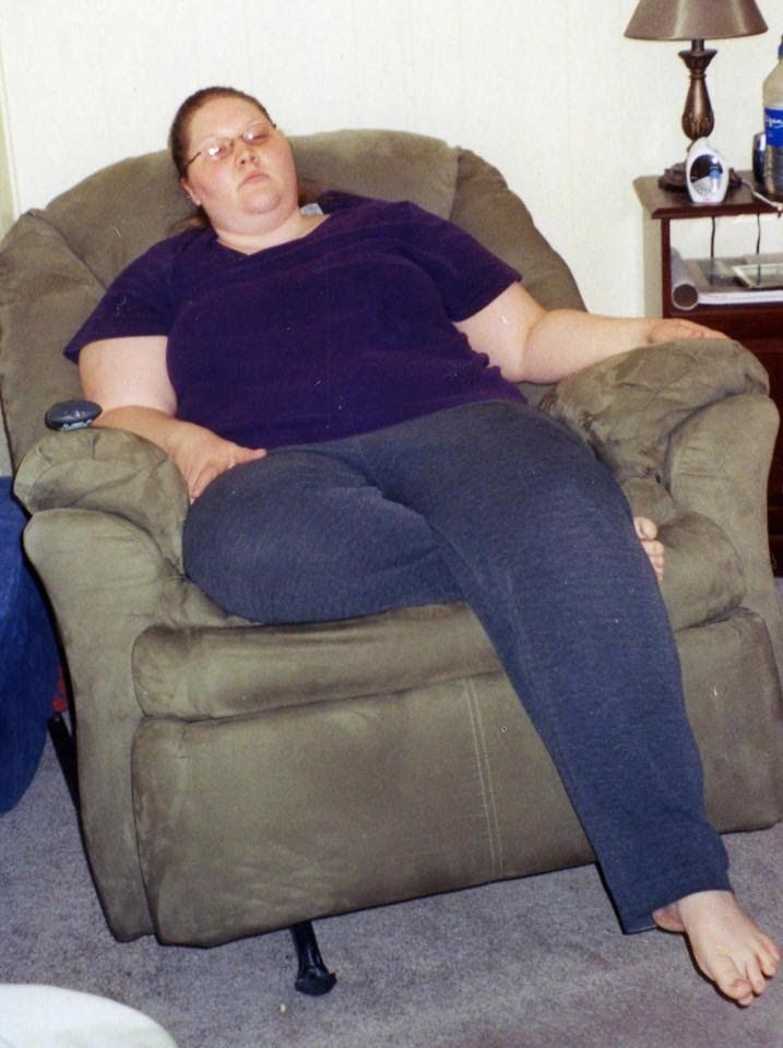 Will florida medicaid pay for weight loss surgery