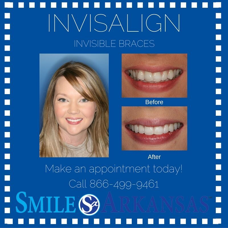 Pin by Smile Arkansas on Services Invisible braces