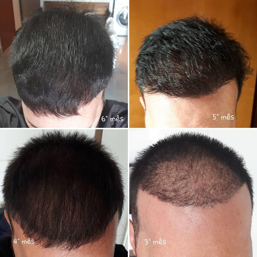 Google Fall Hair Hair Transplant