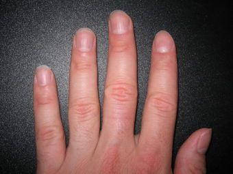 Why Do My Fingernails Split Down the Middle | Health | Fingernail ...
