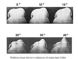 Znalezione obrazy dla zapytania kręgosłup pomiary przesiewowe