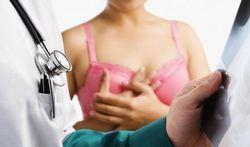 Cancer : pourquoi enlever le sein qui n'est pas atteint ?