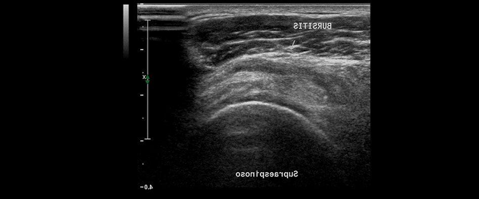 Sonografía Músculo Esquéletica