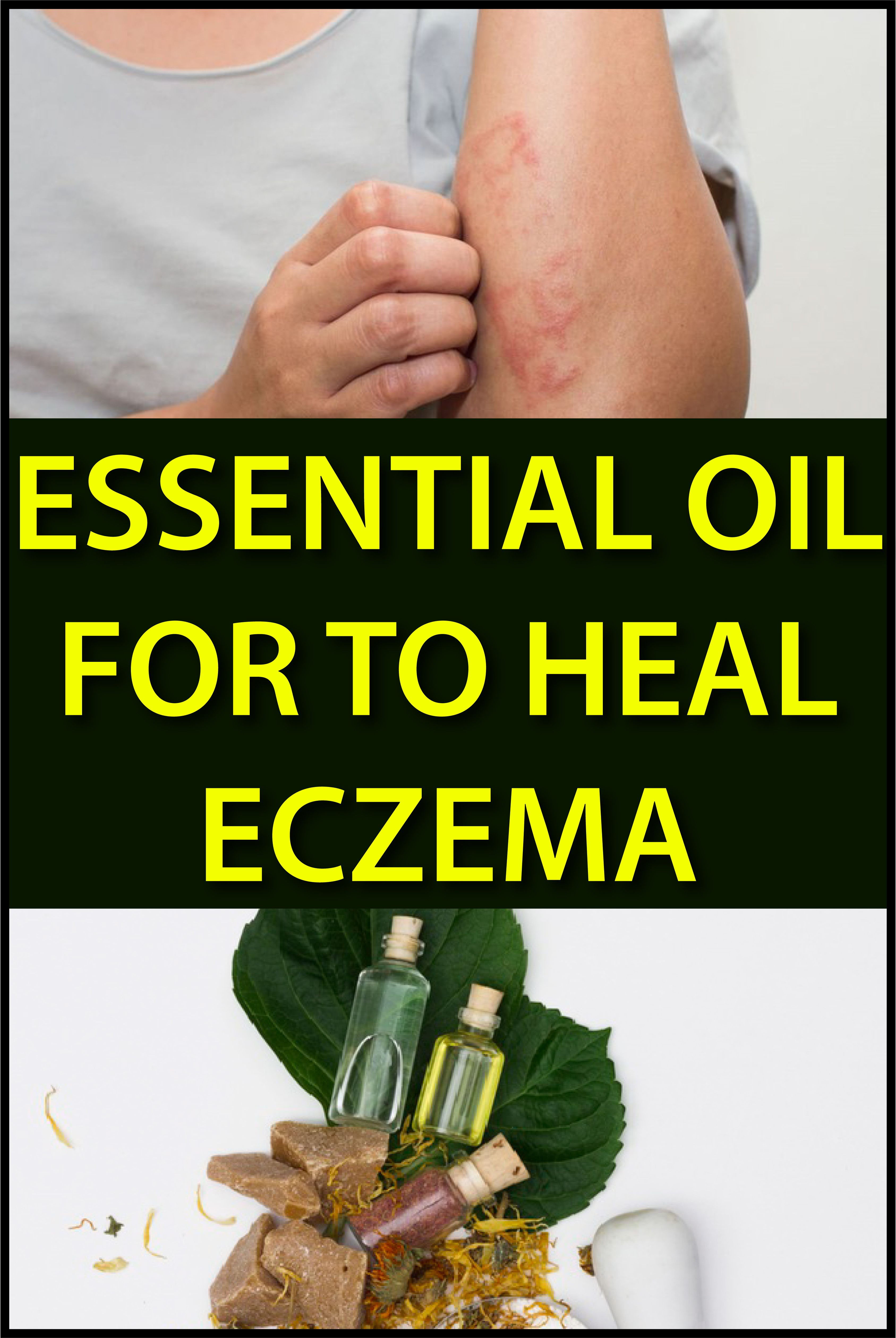 Essential Oil for to Heal Eczema