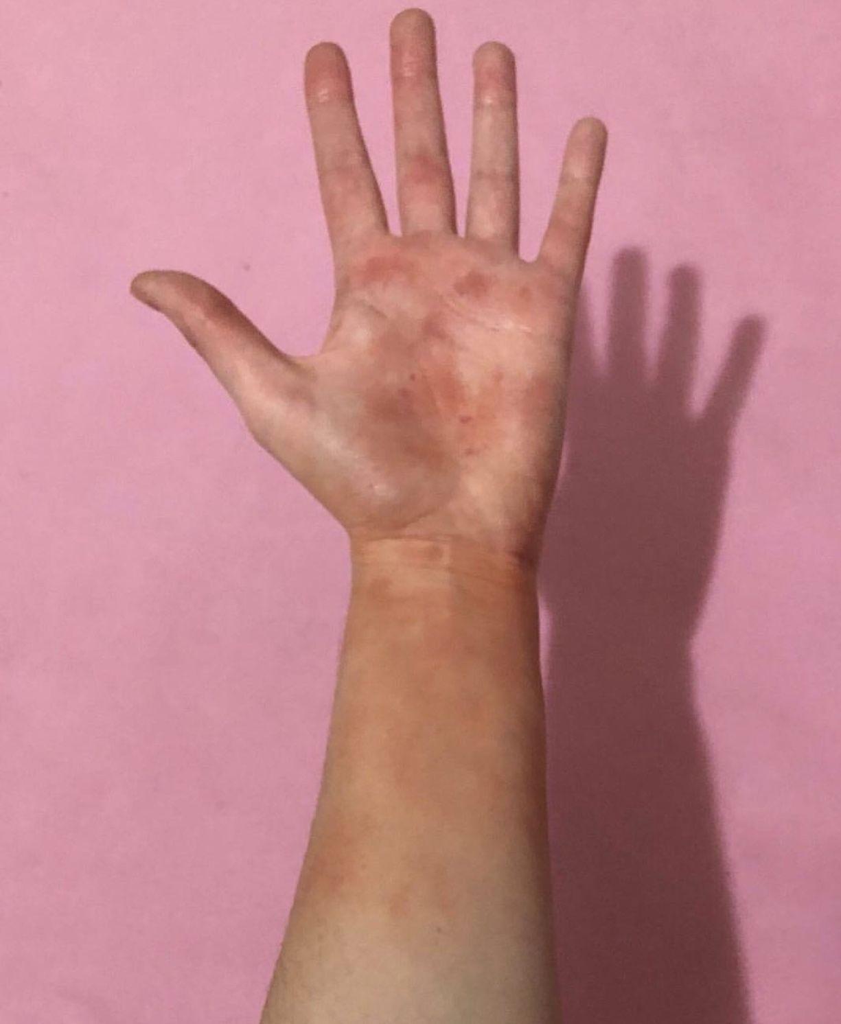 First Degree Burn | Makeup in 2019 | Burns, Hands