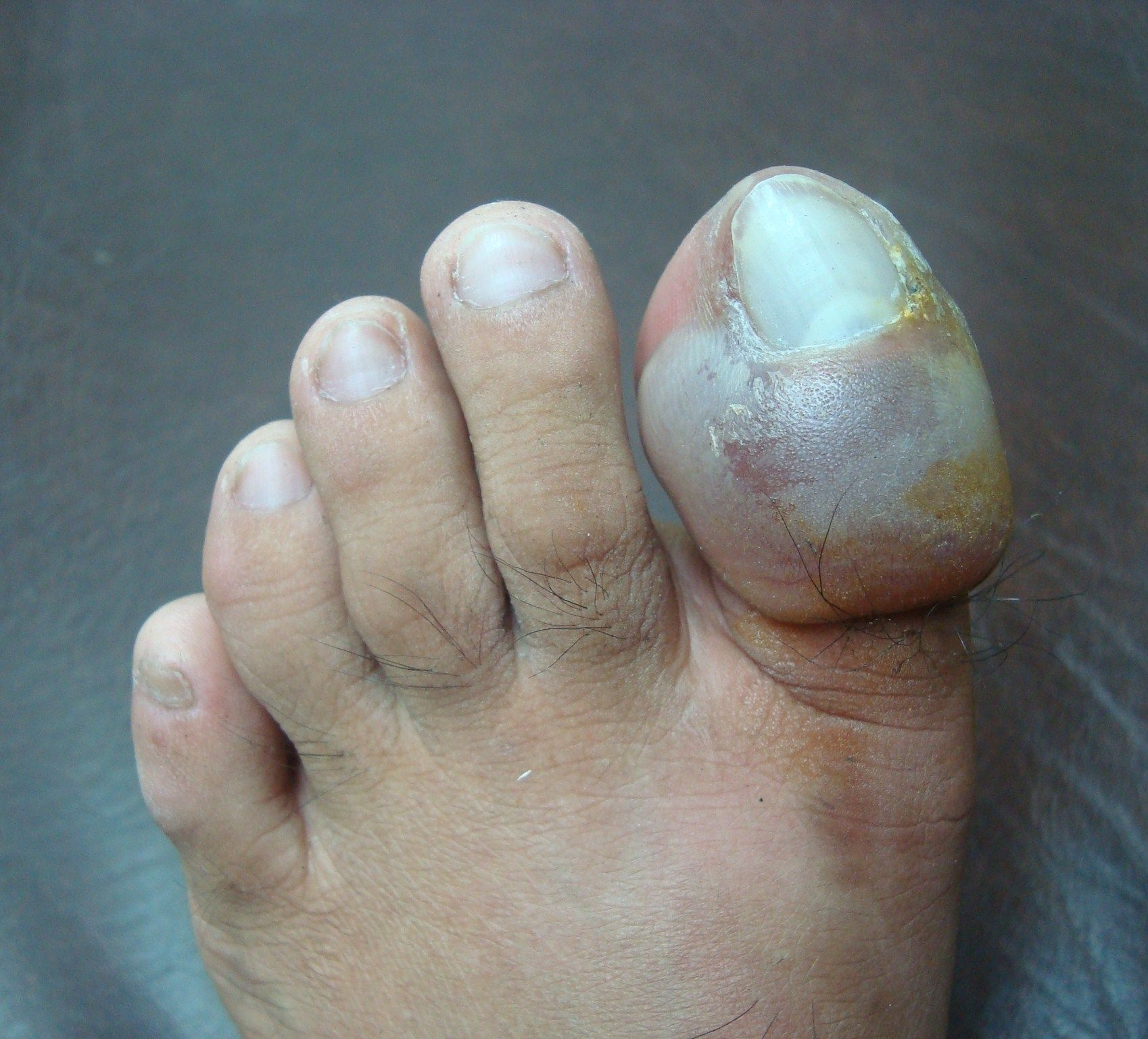 Ingrown Toenail With Blister On Toe Ouch