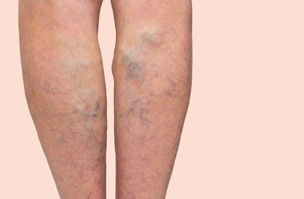 varicose de etanșare de picior)