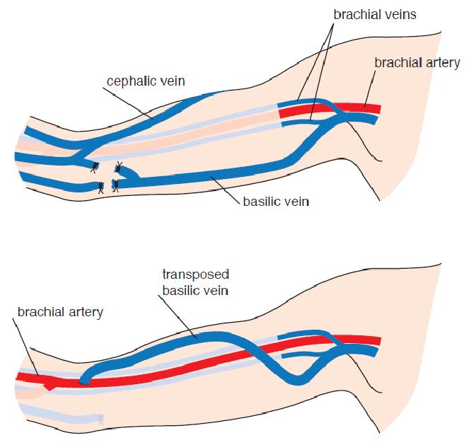 Fig. 5.10 Autologous brachiobasilic arteriovenous fistula. A) The ...