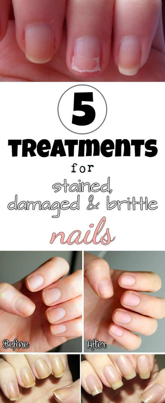 Treatment for stained nails The nails turn yellow or get dark shades ...