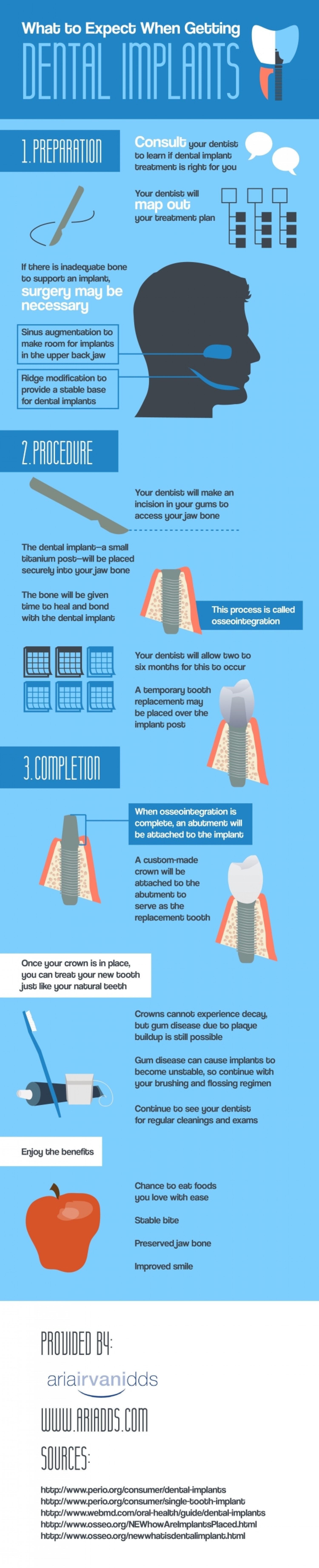 What to Expect When Getting Dental Implants Infographic
