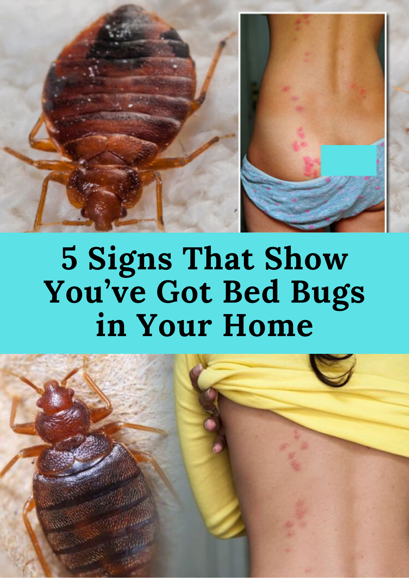 5 Signs That Show You've Got Bed Bugs in Your Home in 2020