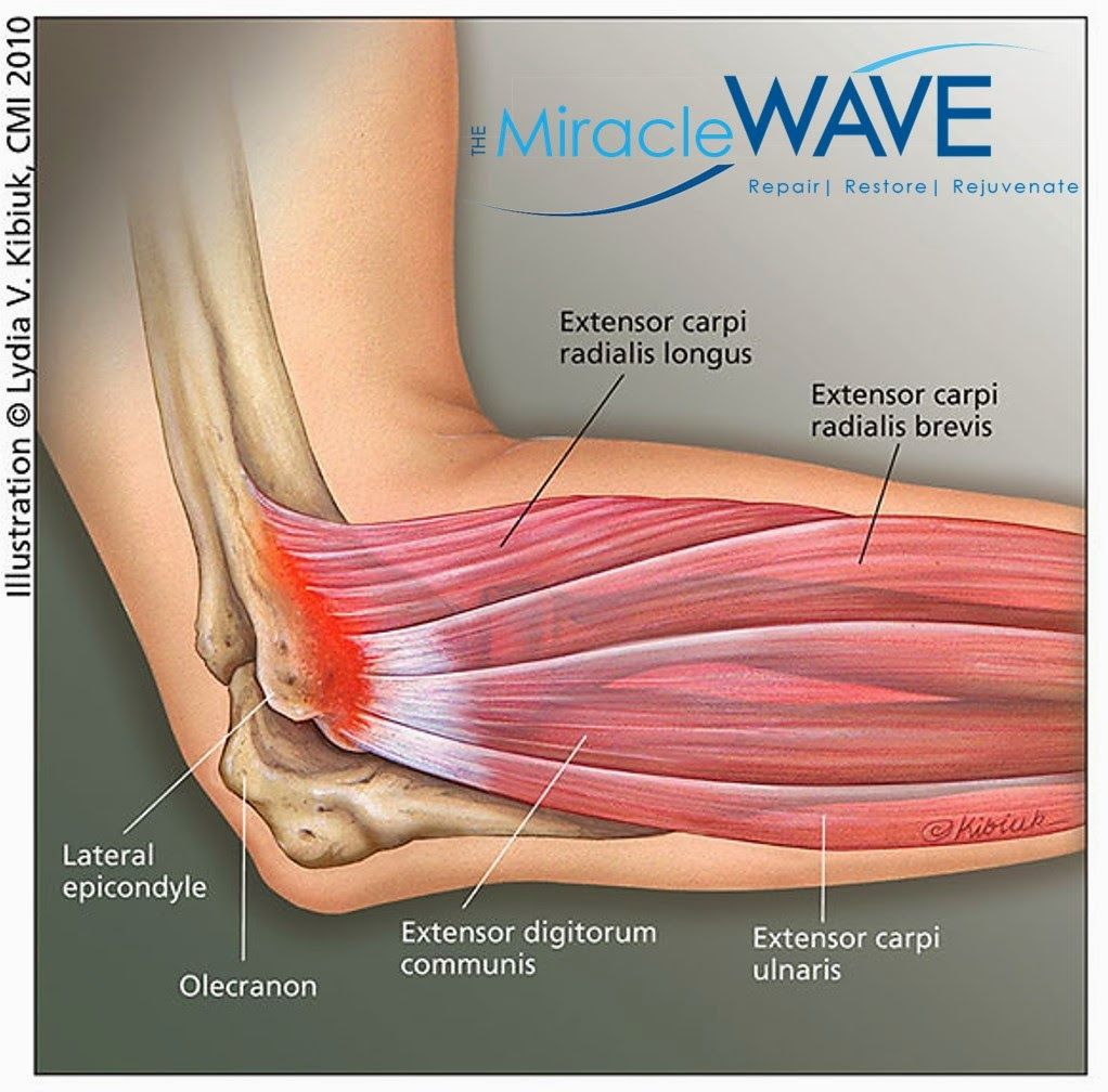 The Miracle Wave: Game On: How The Miracle Wave & Tennis Elbow Can ...